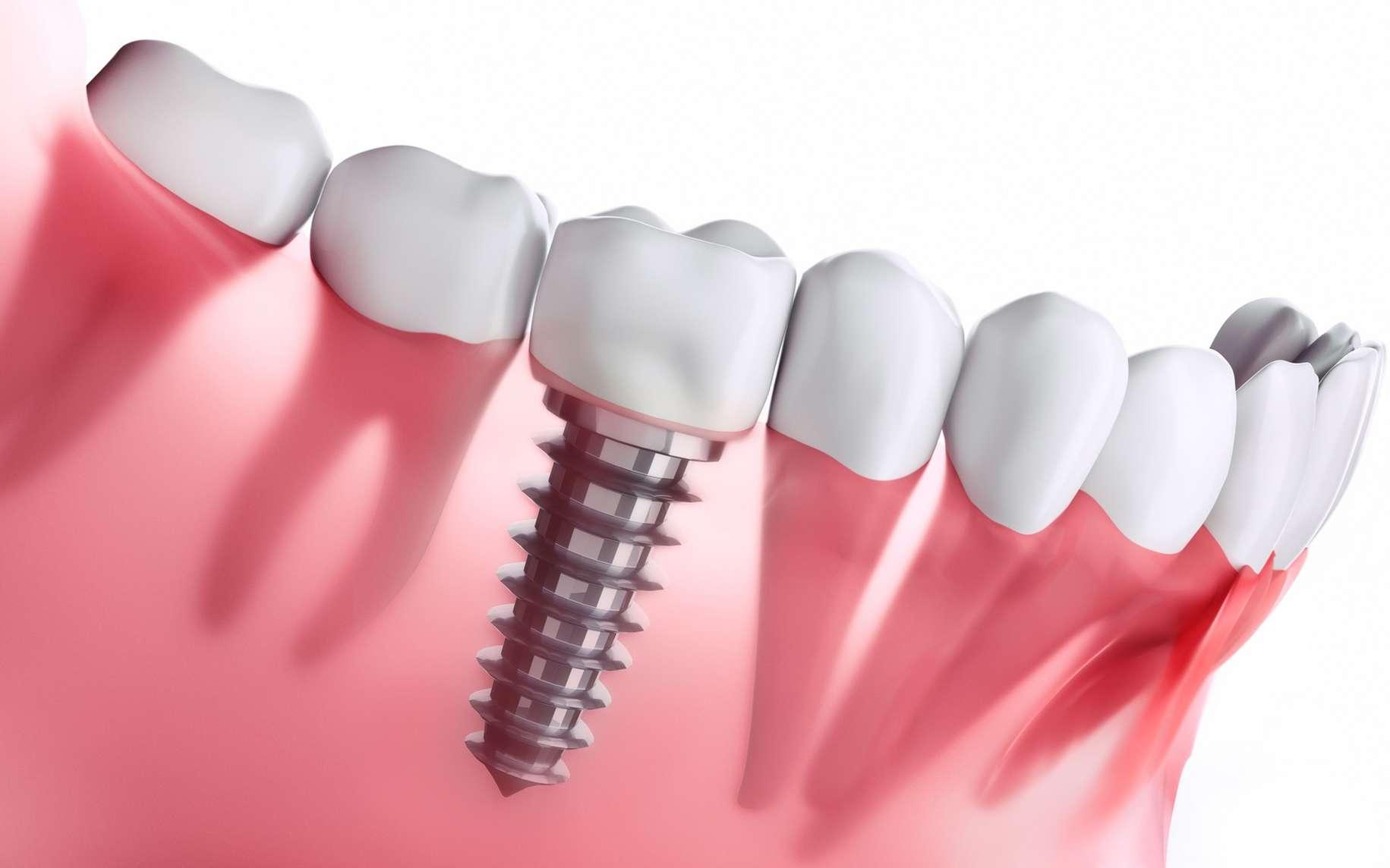Implant dentaire : Pourquoi prendre un implant dentaire ?