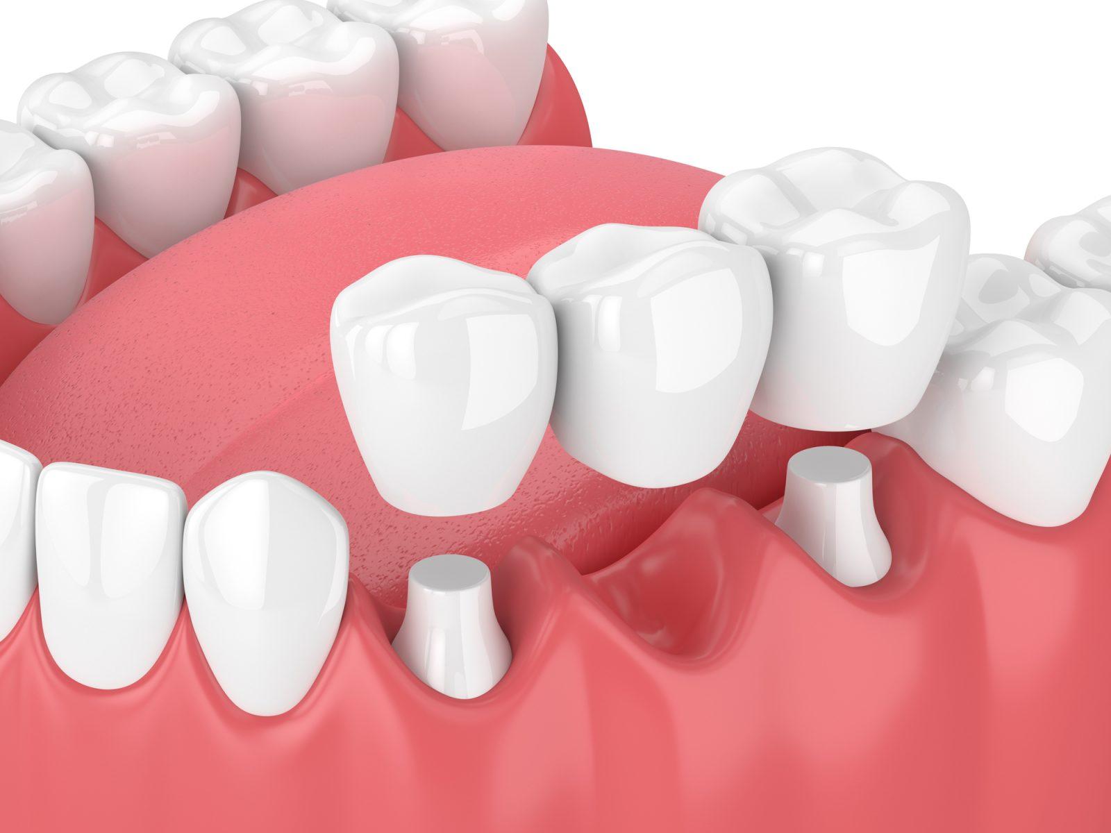Implant dentaire : quelles sont les matières utilisées pour ces prothèses ?
