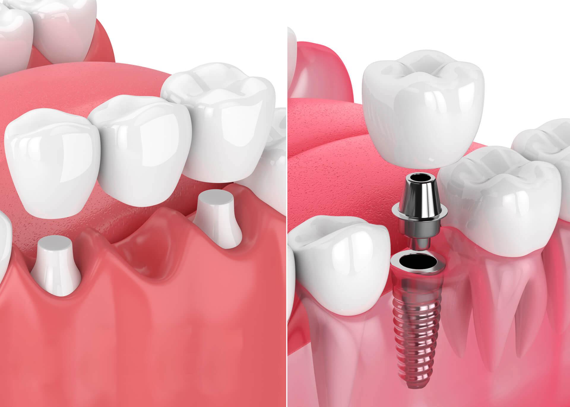 Chirurgie dentaire : une chirurgie merveilleuse ?